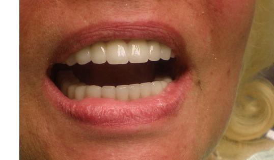 лазерное отбеливание зубов зеленым лазером