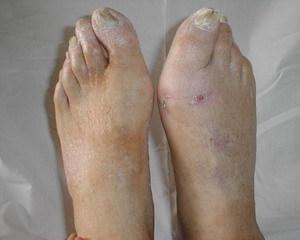 Остеомиелит коленного сустава симптомы полиартроз плечевого сустава симптомы и лечение в домашних условиях