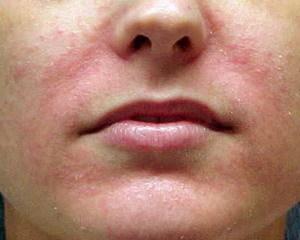 себорейный дерматит. фото